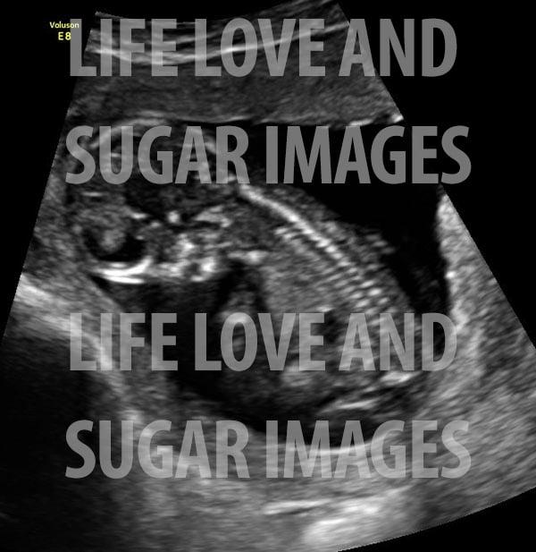 baby b ultrasound